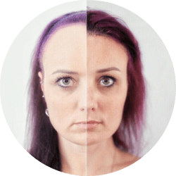 Forehead Lift Brow Lift Cosmetic Surgery
