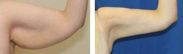 Body Contouring Cosmetic Surgery