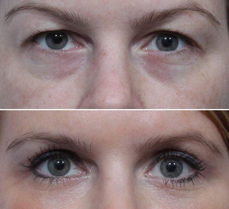 Blepharoplasty Eyelid Surgery Eyelifts