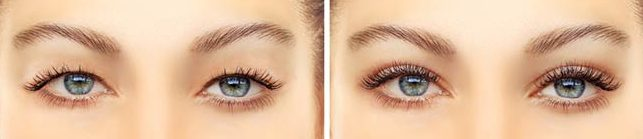 Eyelid Surgery Blepharoplasty and Eye Lift - Michael P