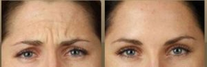 Nonsurgical Options Botox