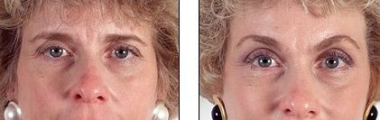 Brow Lift Forehead Lift Cosmetic Surgery