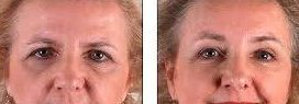 Brow Lift Forhead Lift Cosmetic Surgery