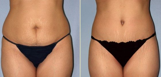 Mommy Makeover Tummy Tuck Cosmetic Siurgery