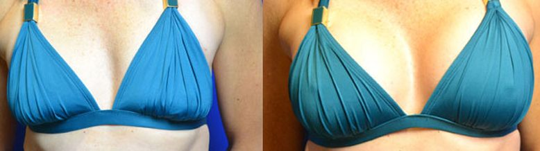 Mommy Makeover Breast Implants Cosmetic Surgery
