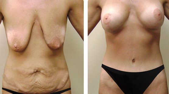 Mommy Makeover Tummy Tuck Breast Implant Cosmetic Surgery