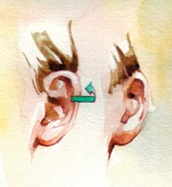 Otoplasty Ear Pinning Cosmetic Surgery