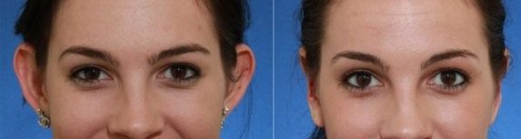 Ear Surgery Otoplasty Cosmetic Surgery