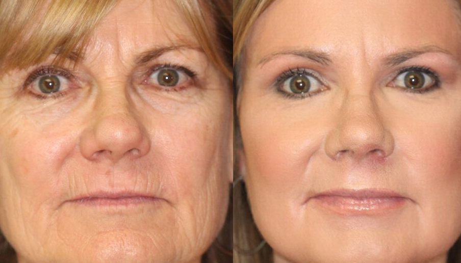 Nonsurgical Options Peels
