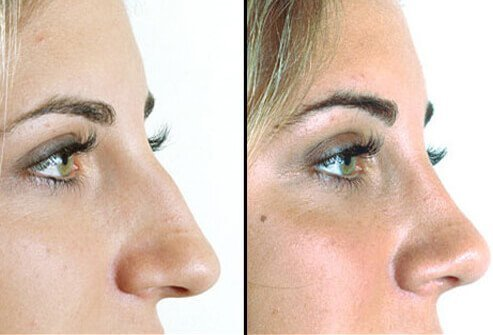 Rhinoplasty Nose Job