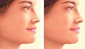 Skin Cacner Scar Revision