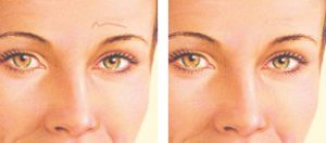 Skin Cancer Scar