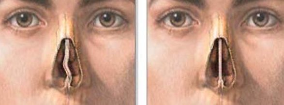 Rhinoplasty Nose Job Surgery Septoplasty - Michael P