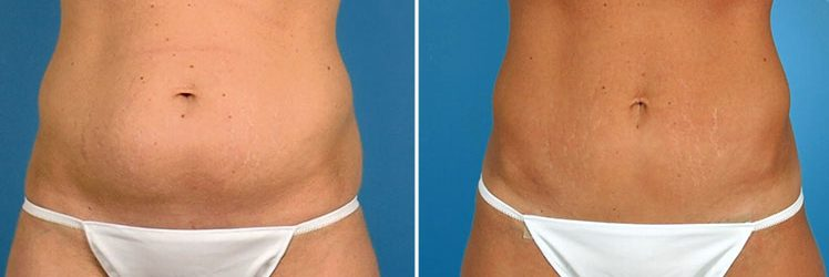 Tummy Tuck Surgery Abdominoplasty