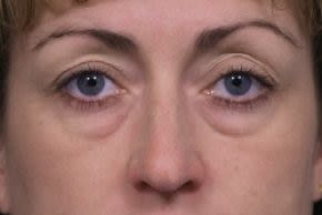 Photos Eyelid Surgery