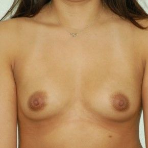 Photos Breast Implants