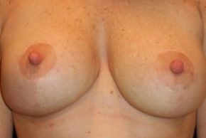 Photos Breast Lift