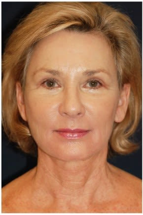 Photos Facelift