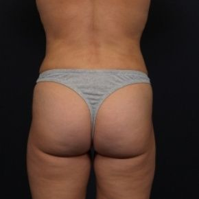 Photos Liposuction