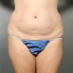 Photos Tummy Tuck