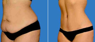 Tummy Tuck Surgery Abdominoplasty - Michael P  Vincent MD FACS
